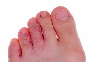 Penyebab dan gejala Dermatomikosis