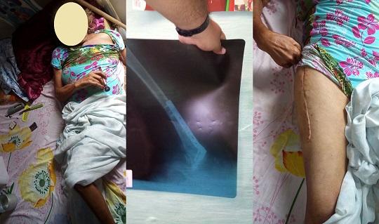 Moradora do Alto de São Sebastião clama por uma cadeira de rodas para poder se locomover