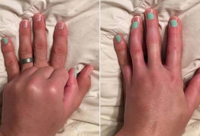 povestea unei femei care si-a pierdut unul din degete
