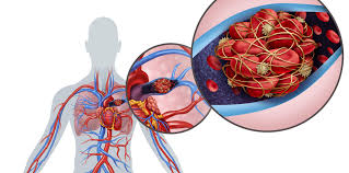 How to Get Rid of Blood Clot Naturally