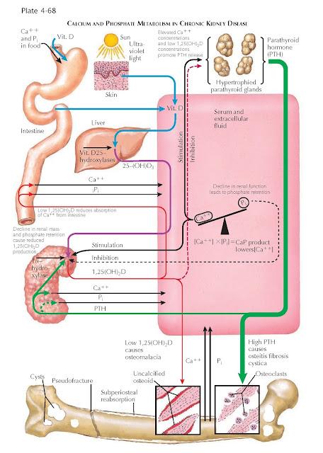 CALCIUM AND PHOSPHATE METABOLISM IN CHRONIC KIDNEY DISEASE