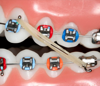 the use of braces rubber band