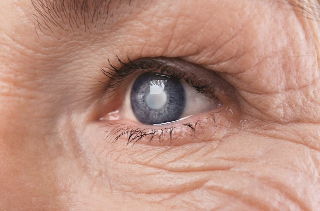 how to better manage glaucoma eye health
