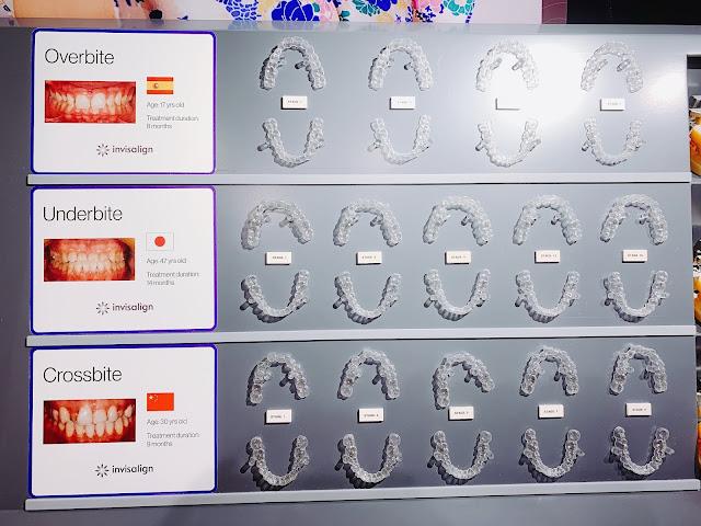 Invisalign, 隱適美, 牙齒, 牙箍模型, 隱形牙箍