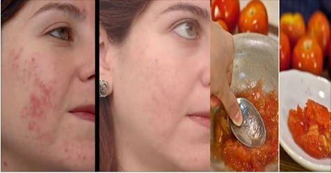 Delicia De Ver Receitas De Beleza Como Usar Tomate Para Tratar