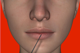 Filler Injections Make You Younger Back