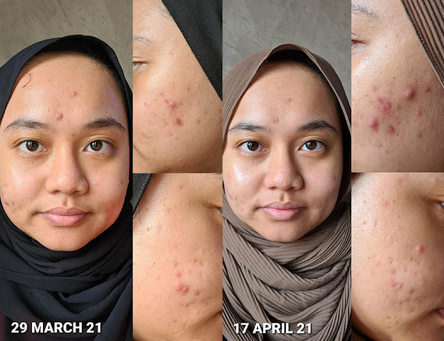 axis-y review skin results for 3 weeks