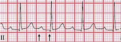 First-degree heart block with prolonged PR interval (interval between arrows), which may be present as a minor criterion for acute rheumatic fever.