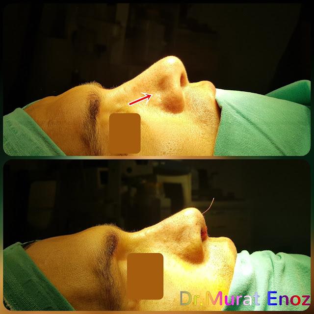 Nostril collapse,Nasal valve collapse,Nasal valve,Alar collapse,Repair of nasal valve collapse,Nasal valve collapse surgery,Nasal valve collaps,Treatment of nasal valve collapse,