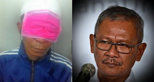 Kasus Corona Capai Rekor Tertinggi 8 Juli, Yuri: Banyak yang Salah Pakai Masker