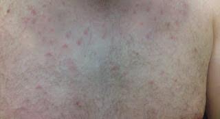 घमोरिया त्वचा का घरेलू सफल इलाज Treatment for Prickly Heat in Hindi