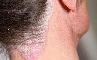 Apa Obat Untuk Eksim Pada Kulit Kepala