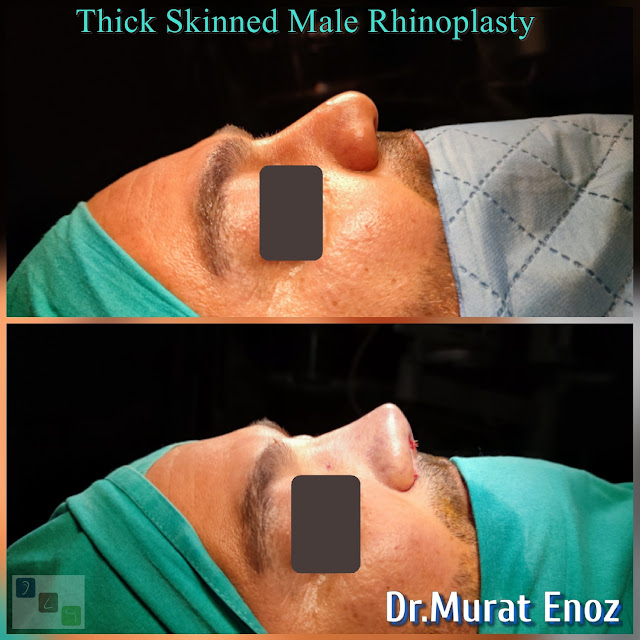 Male Rhinoplasty Operation For Thick Skinned Nose - Oily thick skinned nose job - Nose job for men Turkey