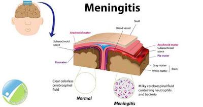 Gejala dan Penyebab Meningitis