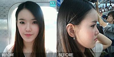 Sebelum operasi dua rahang di Wonjin
