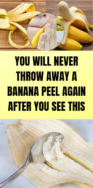 Banana Peel Remedies – You Will Never Throw The Banana Peel After Reading This