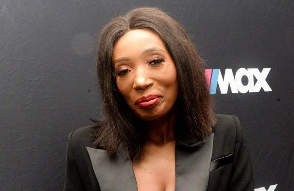 Sophie Lichaba: 'Mzansi Doesn't Realise The Pain Of Losing Half Yourself and Make It Into A Joke
