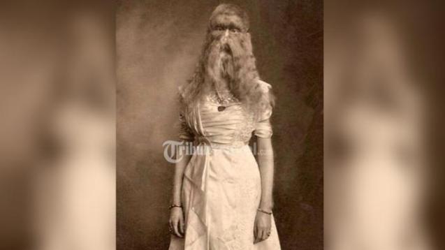 Alice Elizabeth Doherty, Gadis Berwajah Serigala