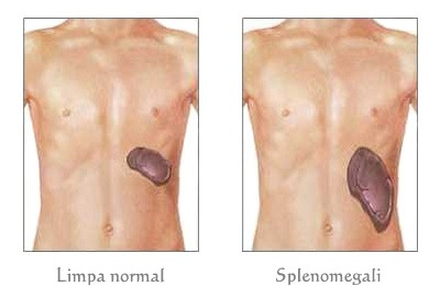 Limpa normal dan splenomegali
