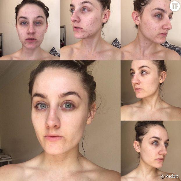 Meilleur recette de tonique facial maison pour rendre la peau plus belle et lisse