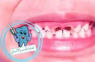 اسنان الاطفال, اسباب تسوس الاسنان, سوسة الاسنان, تسوس الاسنان عند الاطفال, الاسنان عند الاطفال, علاج التسوس, تسوس, شكل السوس, علاج تسوس الاسنان بدون طبيب, تسوس اسنان الاطفال, تسوس الأسنان, علاج تسوس الضرس, تسوس الضرس, تسوس الاسنان الامامية, علاج تسوس الاسنان عند الاطفال 3 سنوات, مراحل تسوس الاسنان, علاج تسوس الاسنان بدون حشو