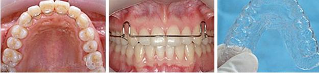 corrective orthodontics