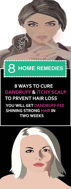 8 Ways To Cure Dandruff And Itchy Scalp To Prevent Hair Loss