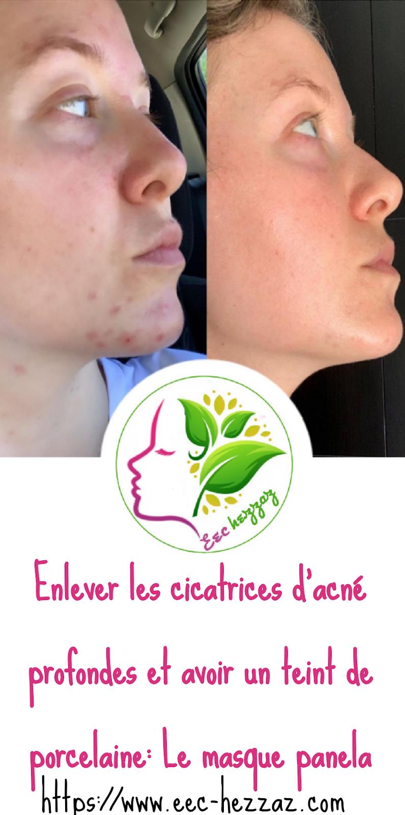 Enlever les cicatrices d'acné profondes et avoir un teint de porcelaine: Le masque panela