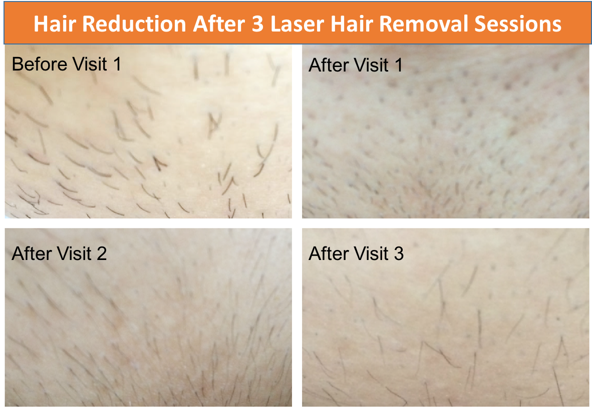 Dallas Mom Blog And Fort Worth Mom Blogger Trendy Mom Reviews My Experience With Laser Hair Removal After 3 Sessions At Spa810 Dallas
