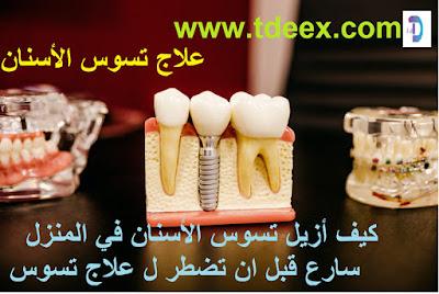 كيف تتخلص من اصفرار اسنانك