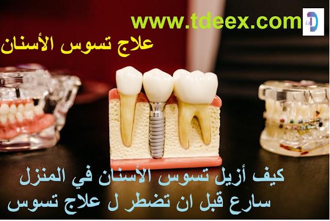 كيف أزيل تسوس الأسنان في المنزل سارع قبل ان تضطر ل علاج تسوس الأسنان