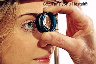 Göz Tansiyonu Hastalığı