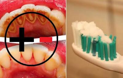kalautau.com - Jangan Gunakan Baking Soda Untuk Membersihkan Karang Gigi