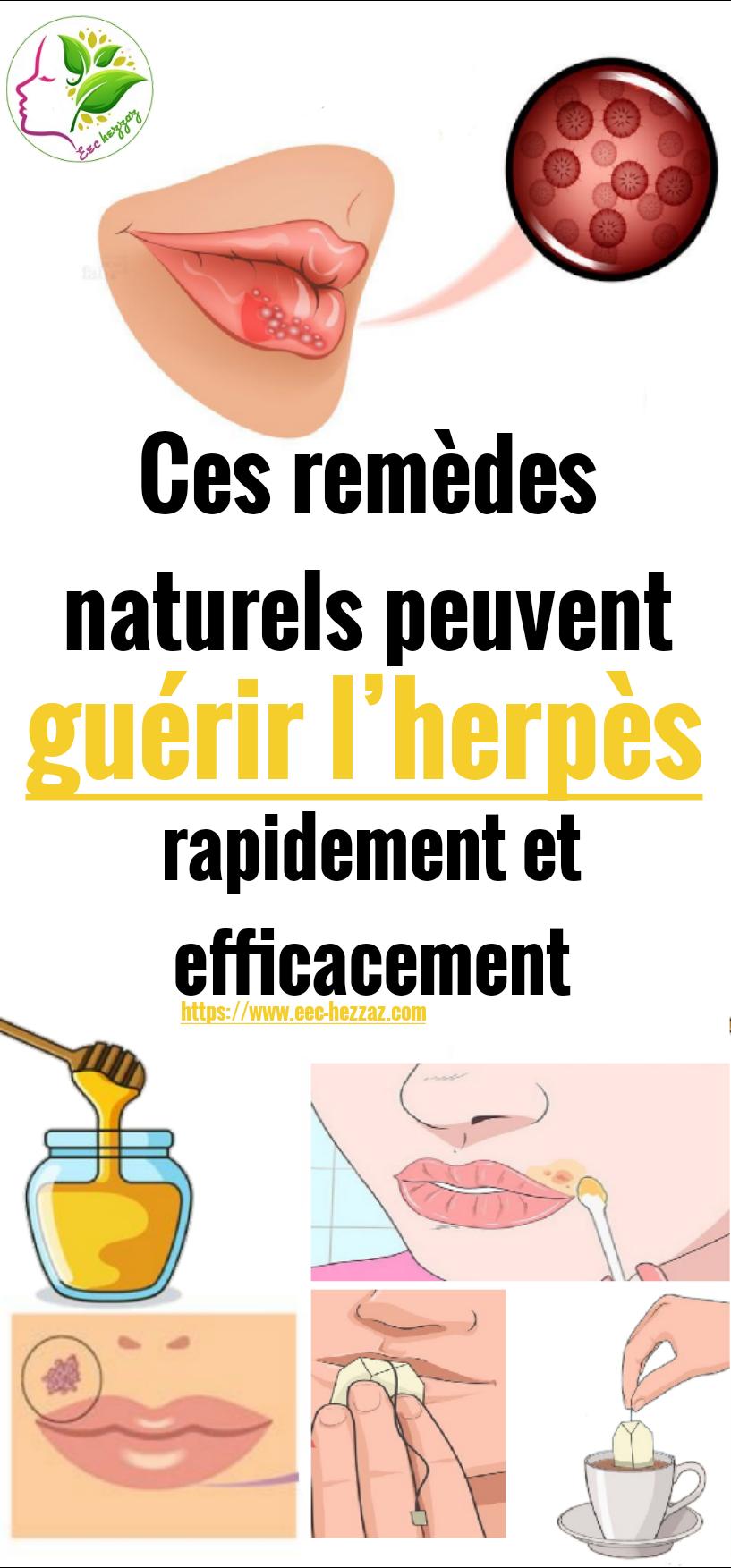 Ces remèdes naturels peuvent guérir l'herpès rapidement et efficacement