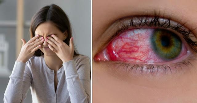 Brûlure et rougeur dans les yeux? Ce sont les symptômes que vous ne devez JAMAIS lâcher