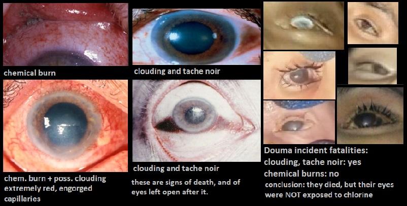 chlorine exposure eyes