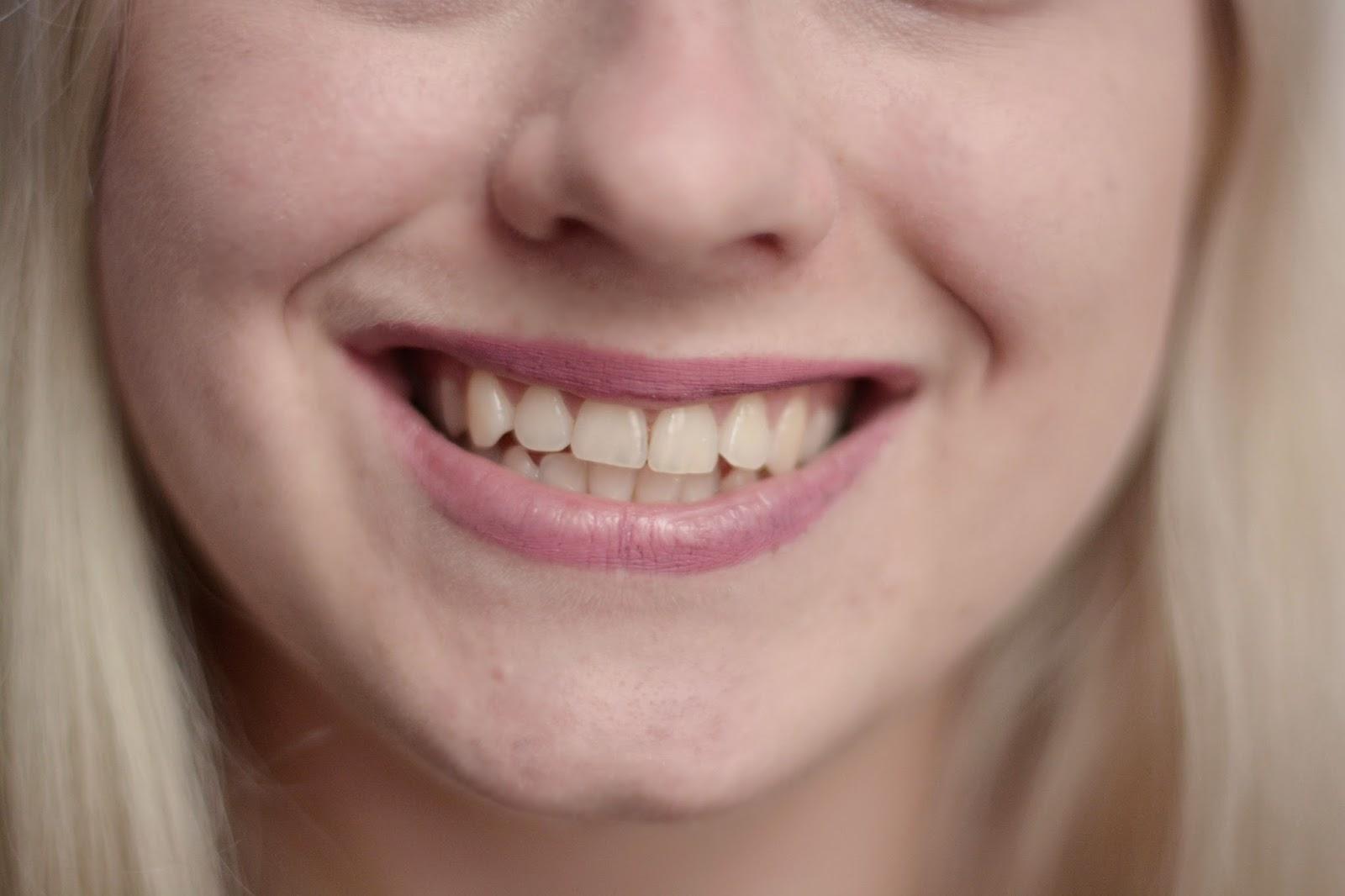 wybielanie zębów co i jak