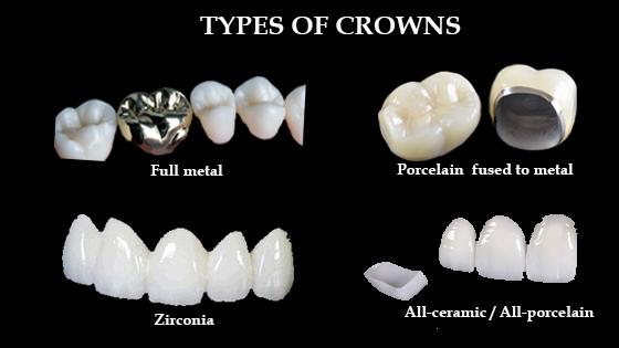 type of crown material zirconia, PFM, metal free and full metal