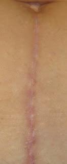 LA cicatriz es muy visible.