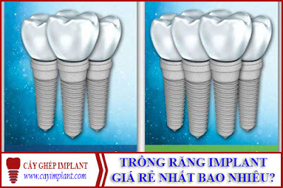 trồng răng implant giá rẻ nhất là bao nhiêu -1