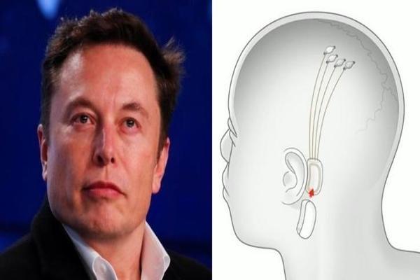 """إيلون ماسك يعلن موعد الكشف عن """"واجهة الدماغ و الحاسوب"""""""