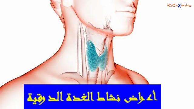 اعراض نشاط الغدة الدرقية,الدرقية,اعراض الغدة الدرقية النشطة,علاج الغده الدرقيه,فحص الغدة الدرقية,كسل الغدة الدرقية,وظيفة الغدة الدرقية