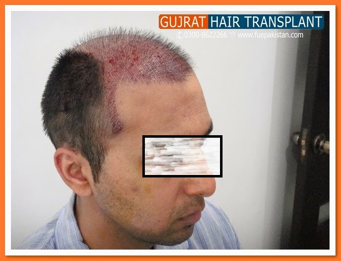 Body Hair Transplant Plus Fue To Increase The Graft Nomber