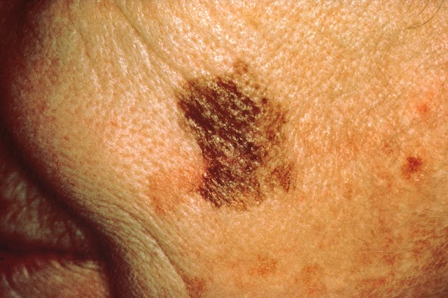 Five Signs Of Skin Cancer That Can Be Instrumental In Saving Your Life