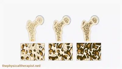 هشاشة العظام : خطر دائم لحدوث الكسور تعرف ما هي !