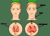 Scegli Thyrolin. Il migliore per la salute della tiroide