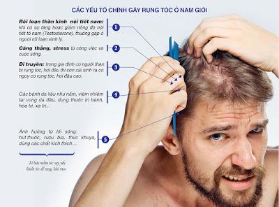 Thuốc trị rụng tóc hói đầu dành cho nam giới