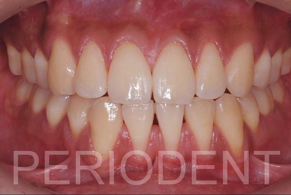 牙齦腫的處理 - 牙齦腫的處理  - 快熱資訊 - 走進時代