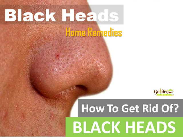 Blackheads, How To Get Rid Of Blackheads, Home Remedies For Blackheads, How To Remove Blackheads, Blackheads Treatment, How To Treat Blackheads, How to Get Rid of Blackheads Overnight, How To Get Rid Of Blackheads Fast, Blackheads Home Remedy, How To Cure Blackheads, How To Take Blackheads Out, Blackheads Remedies, Treatment For Blackheads,