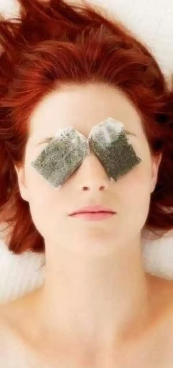 ما علاج انتفاخ واحمرار العين؟